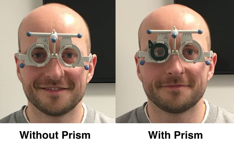On the right, a lens with a darker frame was placed in front of my eye and the eye behind it positioned itself more inward. This can happenn with your progressive glasses with prism.