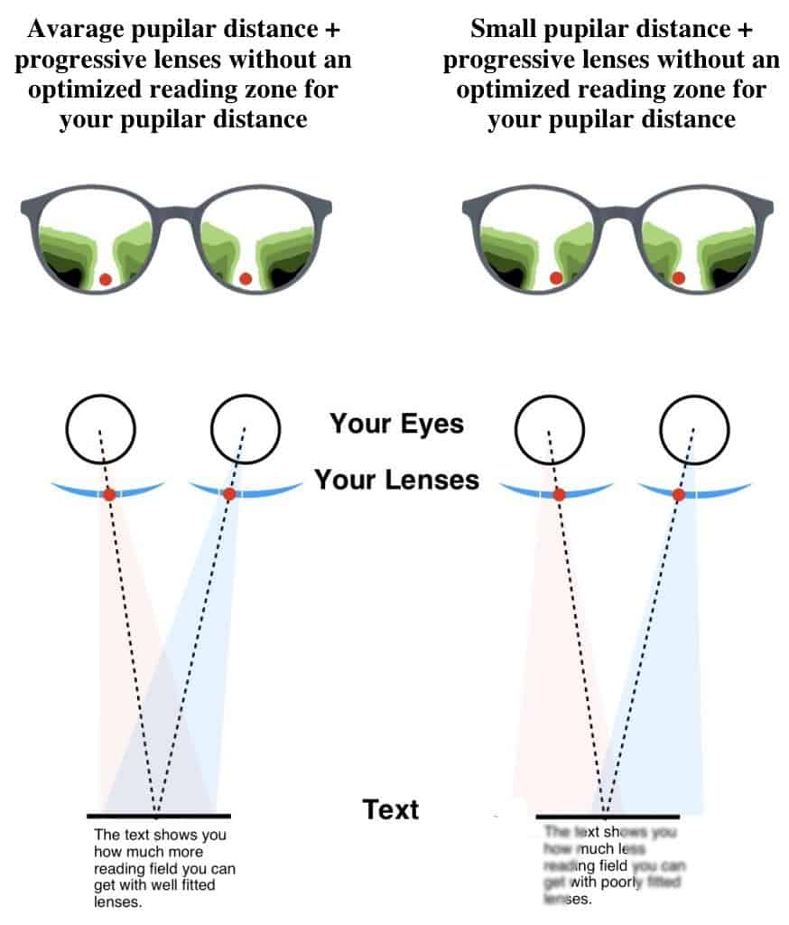 The picture shows when reading zones are perfecty centered in your Hoya Progressive Lens Designs on the left side of the picture. The right side of the picture shows a smaller pupillary distance in combination with a Progressive Lens Designs that does not consider the smaller pupillary distance.