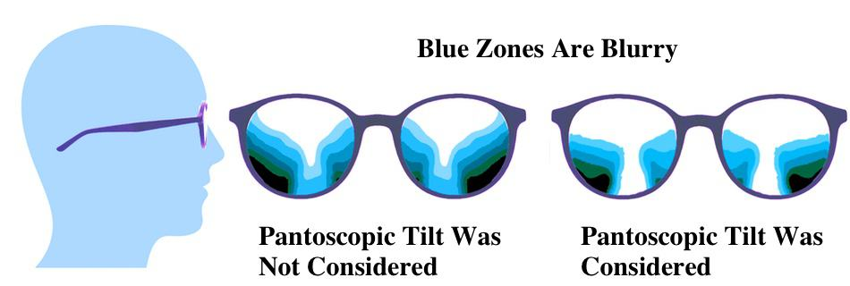 The picture shows blurry zones in progressive lenses if the pantoscopic tilt was considered or not.