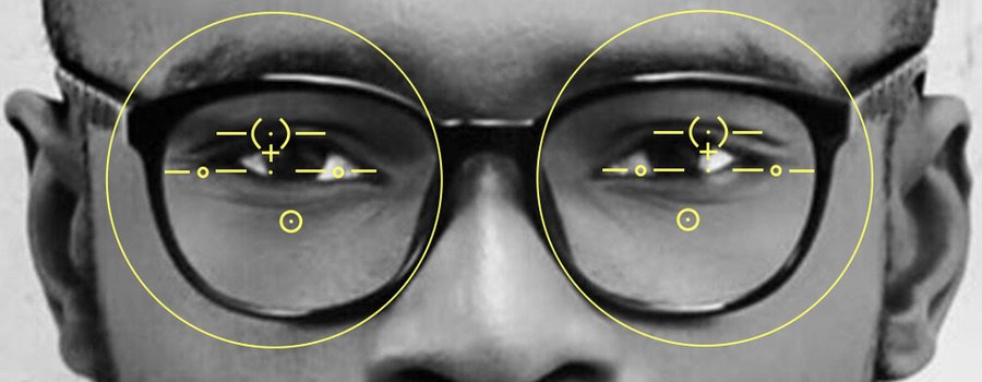 The picture shows progressive glasses with a pupillary distance setting which is too wide for the wearer behind the lenses.