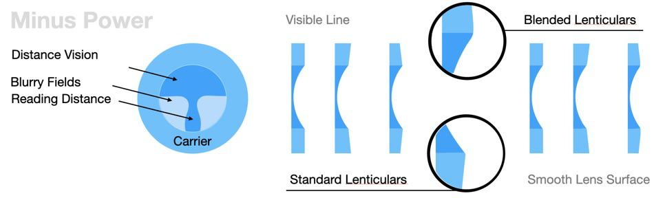 The picture shows different lenticular lens designs for myopes