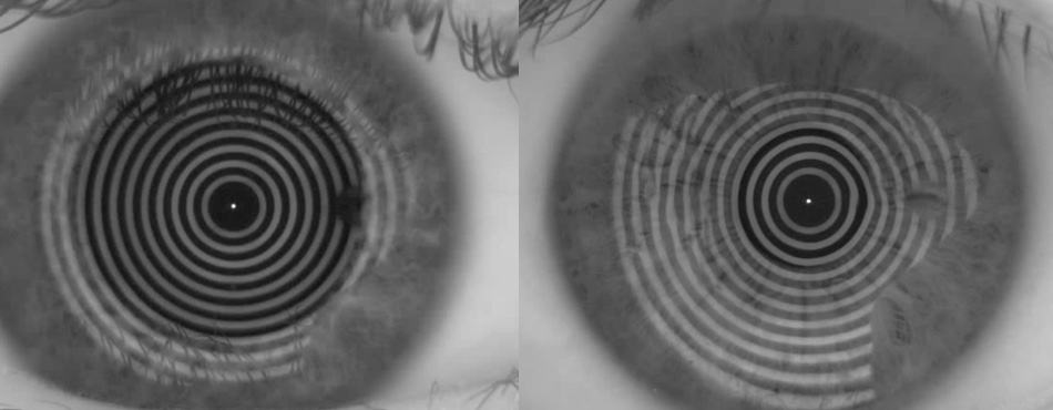 showing a cornea with a good tearful on the left. This way the wearer will get perfect progressive glasses. On the right the shape of the reflected rings is deviated from the optimum. In this case the wearer will not end up with the perfect progressive glasses