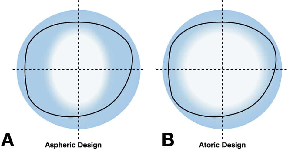 The picture shows the illustrated clear field of view with an aspheric and a atomic lens