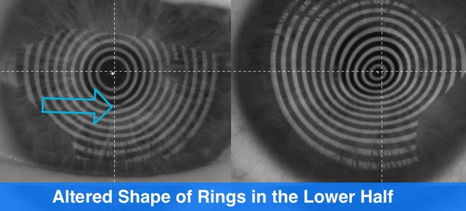 the picture shows when it makes sense to correct keratoconus with progressive lenses and when not to