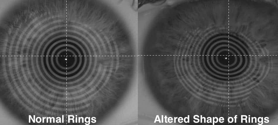 The picture shows the difference between the reflections on an normal eye and an eye with keratoconus