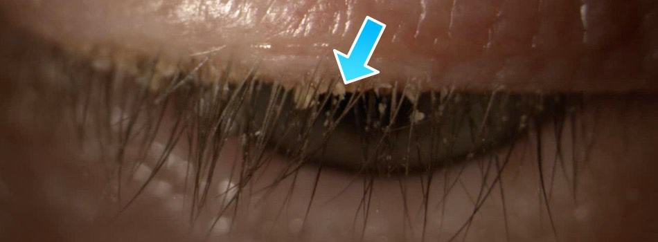 The picture shows flaky deposits in eyelashes