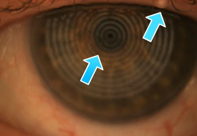 The picture shows a clogged up meibomian gland and a unstable tearfilm which results in a teary eye